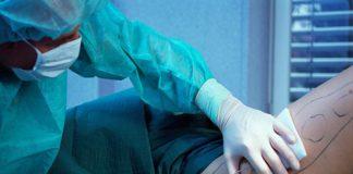لیپوساکشن چیست؟ موارد استفاده، مزایا و خطرات آن