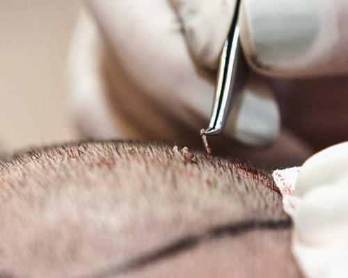 کاشت مو چیست،انواع کاشت مو،اقدامات لازم قبل از کاشت مو