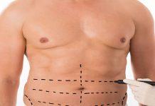 جراحی آبدومینوپلاستی یا تامی تاک چیست؟