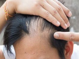 ریزش مو چیست، علل و روش تشخیص آن