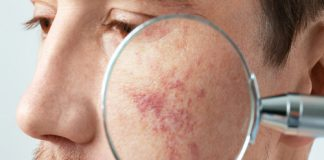 هرآنچه در مورد هایپرپیگمنتیشن یا لک های پوستی باید بدانید
