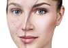روش های درمان لک صورت