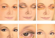 هزینه و طول درمان جراحی پلک یا بلفاروپلاستی