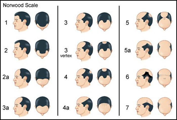 ریزش مو در مردان: درمان ها و راه حل ها