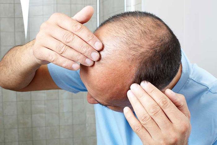 سوالات متداول درباره کاشت مو