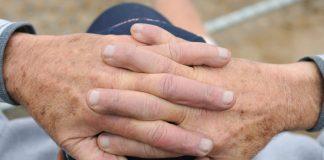 لکه های تیره روی پوست یا لکه های پیری: علل و نحوه درمان