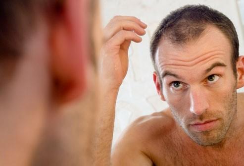 ریزش موی مردانه به مرور و با افزایش سن امری عادی است