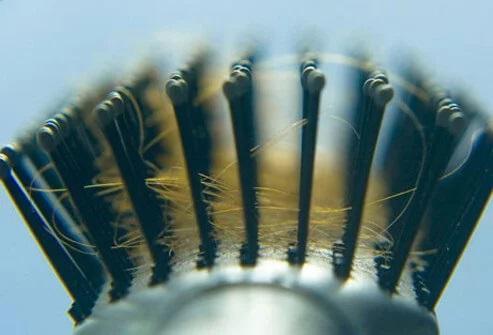 ریزش 50 تا 100 تار مو در روز طبیعی است