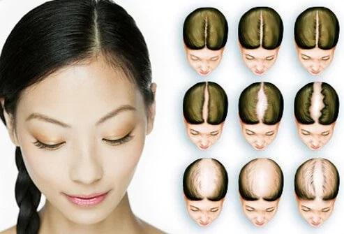 روش اندازه گیری ریزش مو در زنان