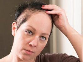 درمان ریزش موهای غیرآندروژنیک