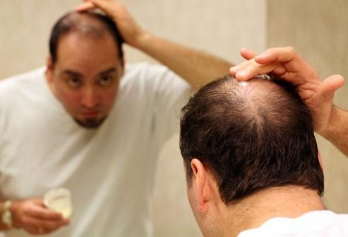 ماینوکسیدیل داروی ضد ریزش موی مردانه