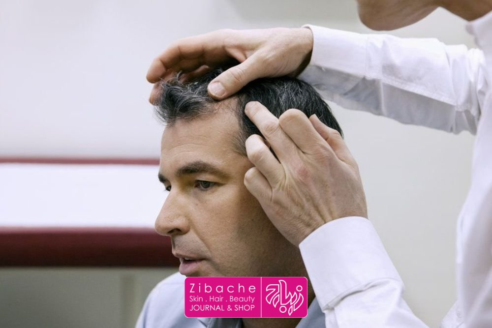 علل ریزش مو