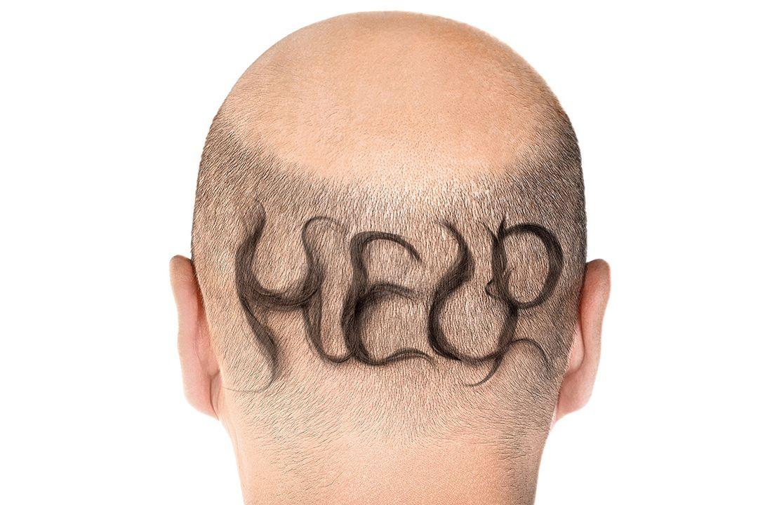 ریزش موی مردانه
