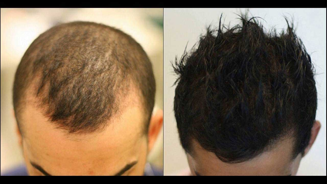 درمان های غیر دارویی در ریزش مو