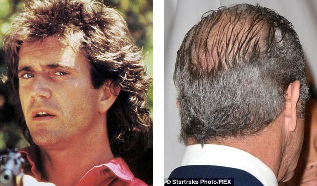 ریزش مو از چه سنی آغاز می شود؟