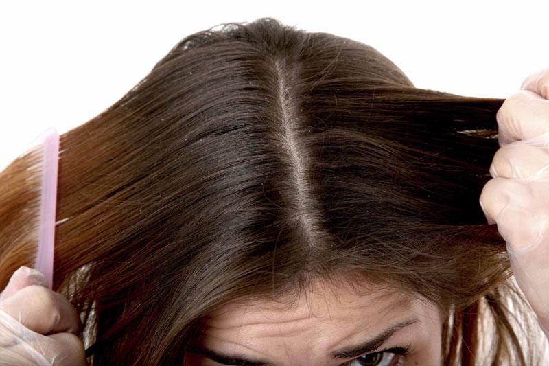 آیا شوره سر موجب ریزش مو می شود؟