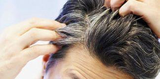 چگونه از سفید شدن موها جلوگیری کنیم؟
