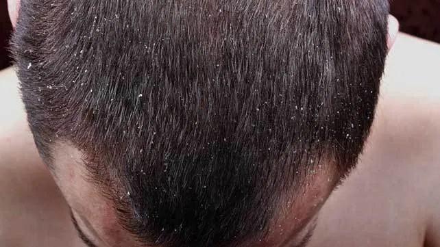 تشخیص پسوریازیس پوست سر