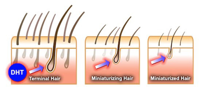 ریزش موی ارثی