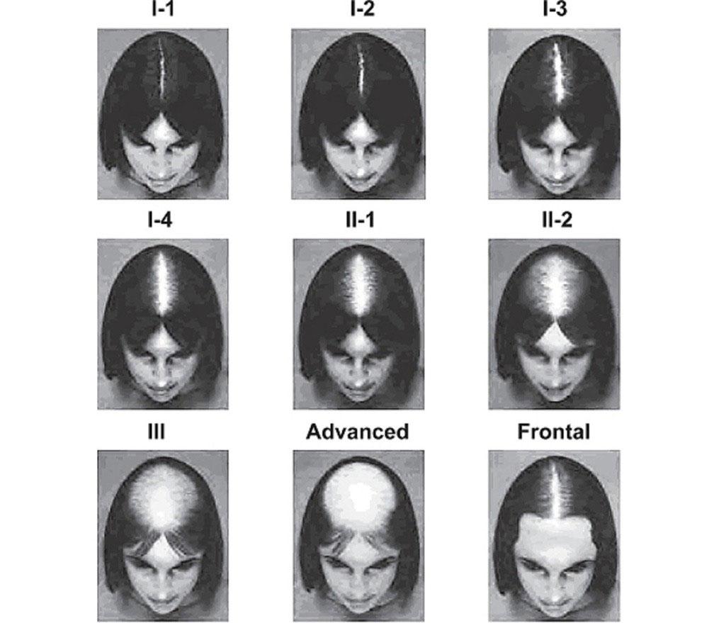 آیا برای بررسی علل ریزش مو نیاز به آزمایش تشیخصی دارم؟