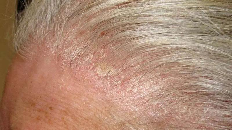 تفاوت شوره سر و پسوریازیس - پسوریازیس پوست سر ملایم