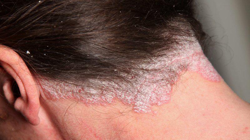 درمان های خانگی پسوریازیس