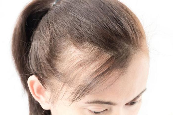 ریزش مو به دلیل مشکلات غده تیروئید