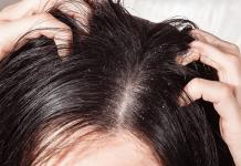 تفاوت شوره سر و پوسته ریزی پسوریازیس در چیست؟