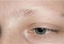 علت ریزش موی ابرو و نحوه درمان آن