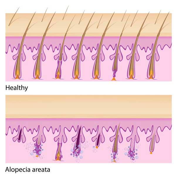 وضعیت مو ها در ریزش مو سکه ای - آلوپسی آره آتا