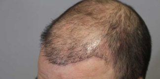 چه زمانی کاشت مو نتیجه بخش نیست؟