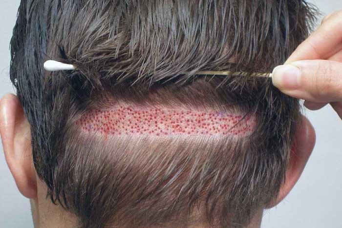 هرآنچه باید در مورد کاشت مو بدانید