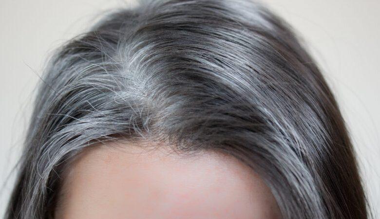 کاهش سفیدی مو