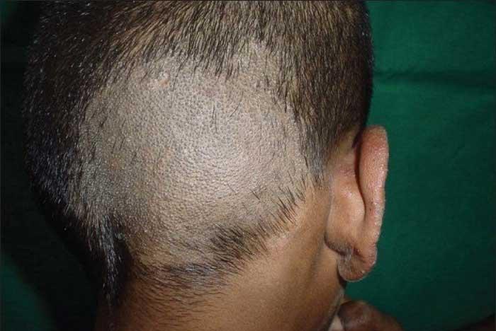 عفونت قارچی مو یا تریکومایکوزیس