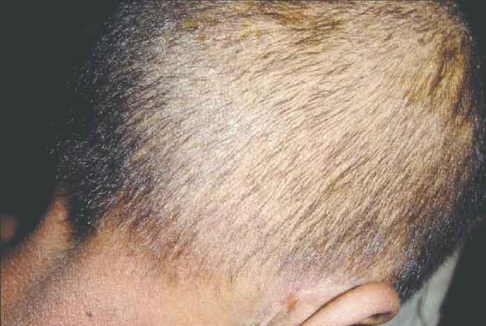 آیا ممکن است کاشت مو، موها را نازک تر کند؟