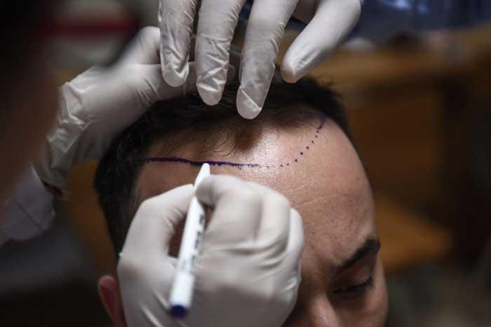 تغذیه مناسب بعد از کاشت مو چگونه باید باشد؟