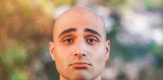 علت ریزش مو در جوانی و اوایل دهه 20 زندگی