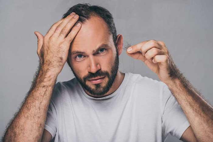 راهکارهایی برای جلوگیری از ریزش مو به دلیل شوک احساسی