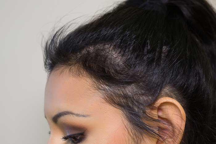 از استفاده از اتو مو و سشوار بیش از حد بپرهیزید