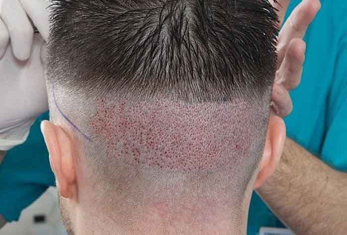 بهترین سن مناسب برای کاشت مو چه زمانی است؟