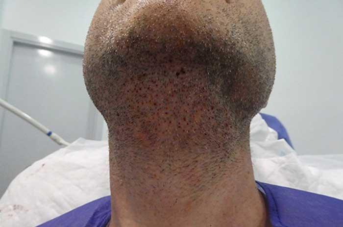 کاشت مو به روش BHT چیست؟