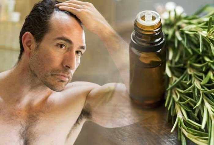 درمان گیاهی ریزش شدید مو چیست؟