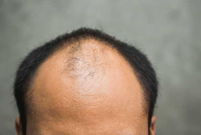 5 مرحله روانشناسی سوگواری بعد از ریزش مو