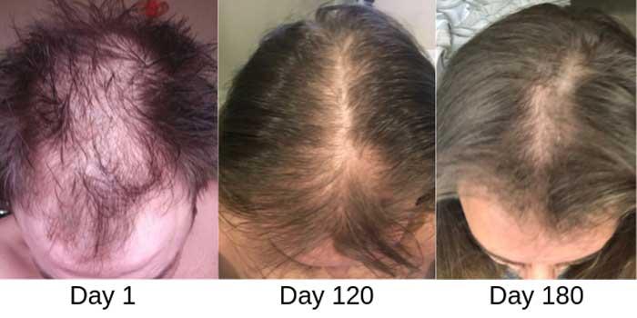 درمان ریزش مو با لیزر ادیت