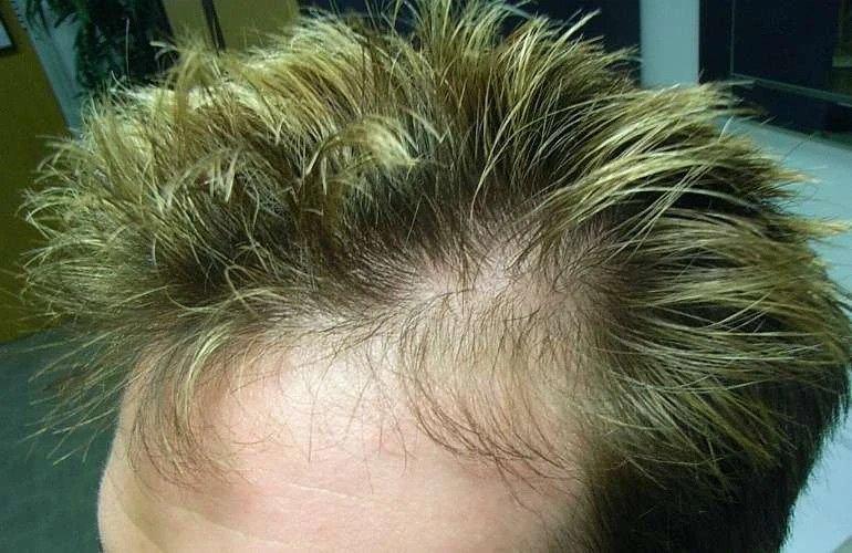 ریزش موی تلوژن افلوویوم چیست؟