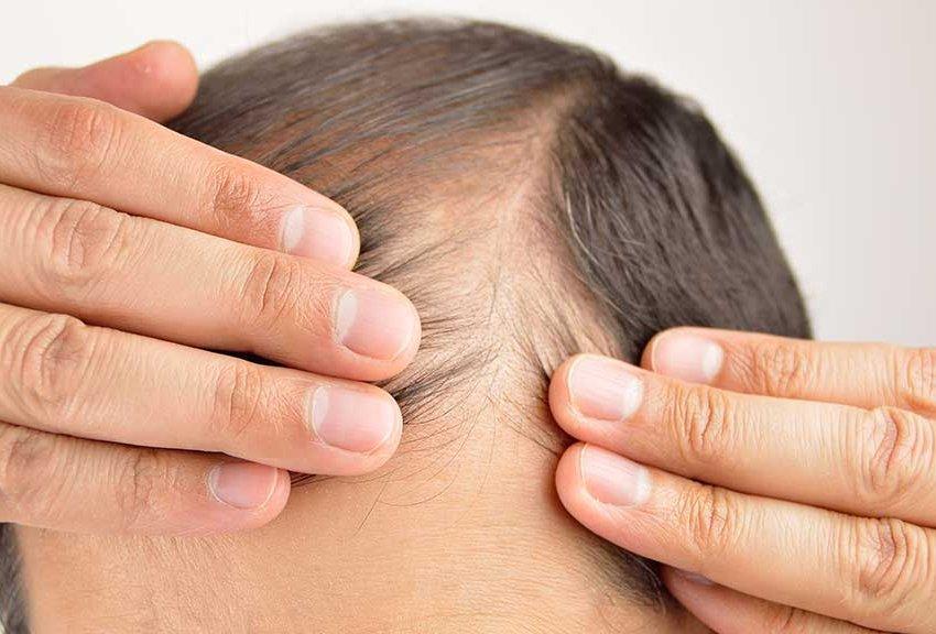 ریزش مو بر اثر بیماری دیابت