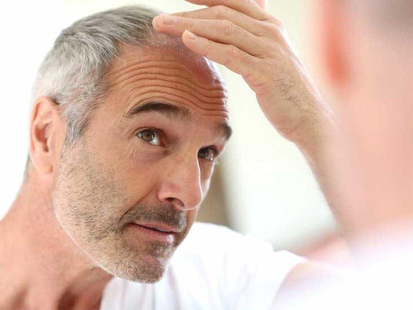 انواع ریزش مو - ریزش ناشی از افزایش سن