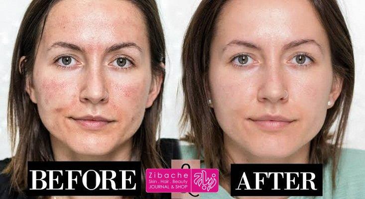 مزونیدلینگ برای کاهش رنگدانه ها و علایم پیری پوست صورت