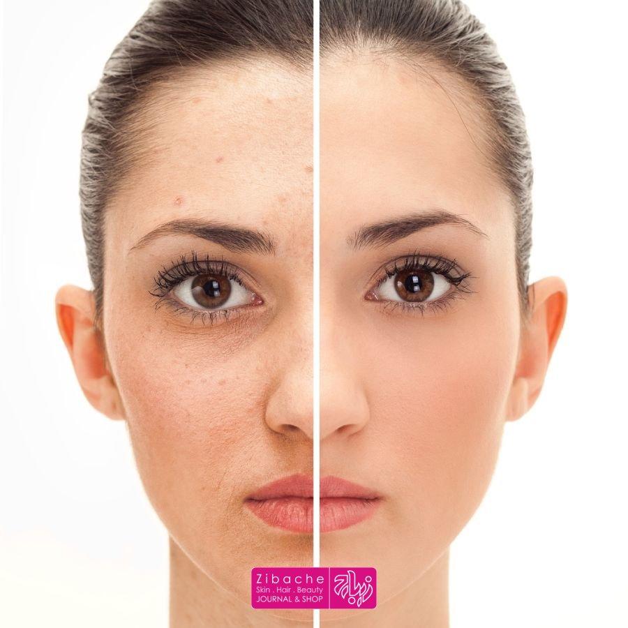 اسید هیالورونیک مناسب برای انواع پوست ها