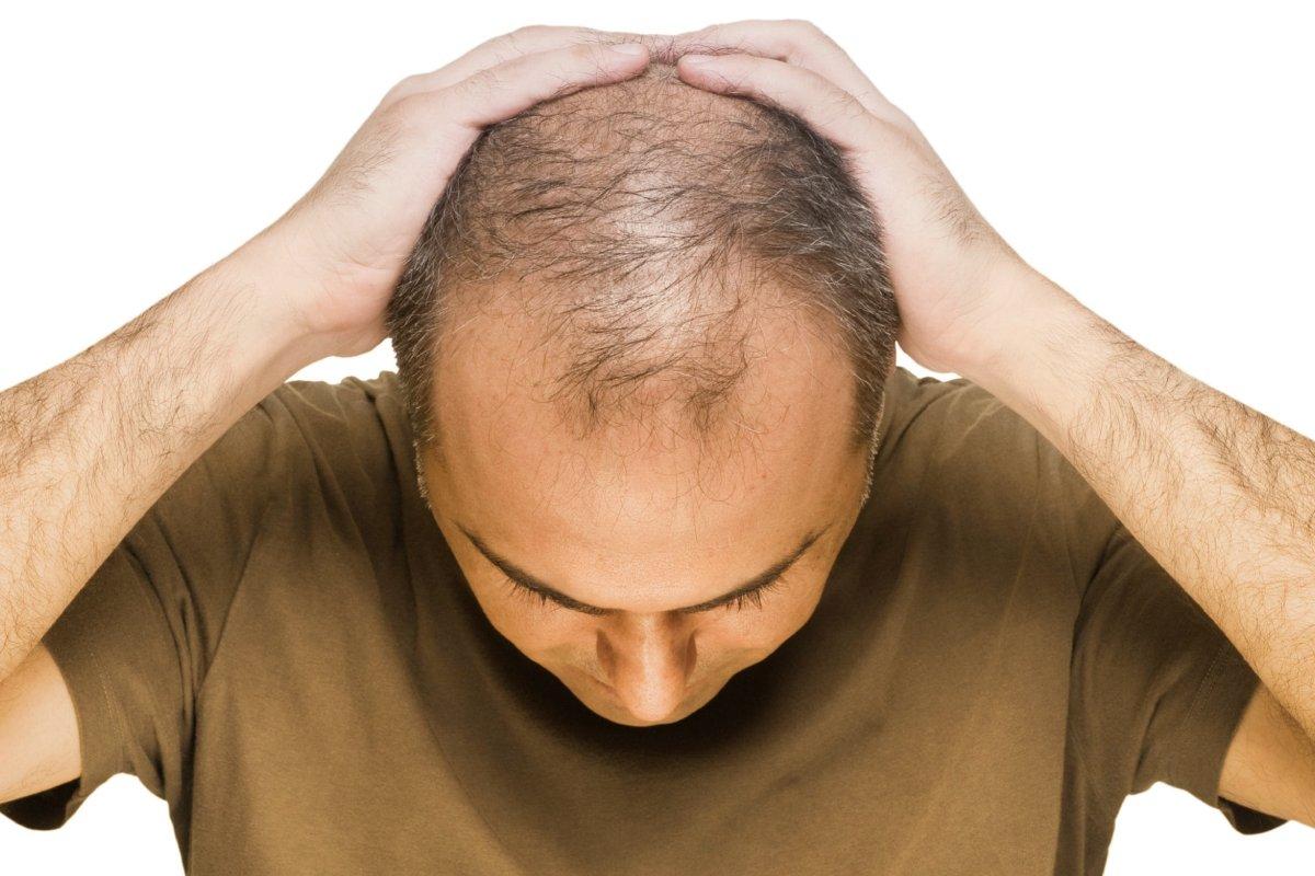 جلوگیری از ریزش مو در مردان